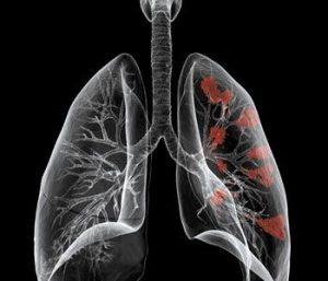 治疗肺癌的新靶向药物阿法替尼