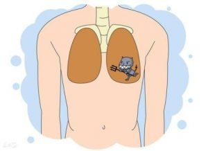 阿法替尼治疗肺癌总生存期可达27.3个月
